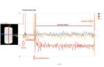 Acceleromter Data